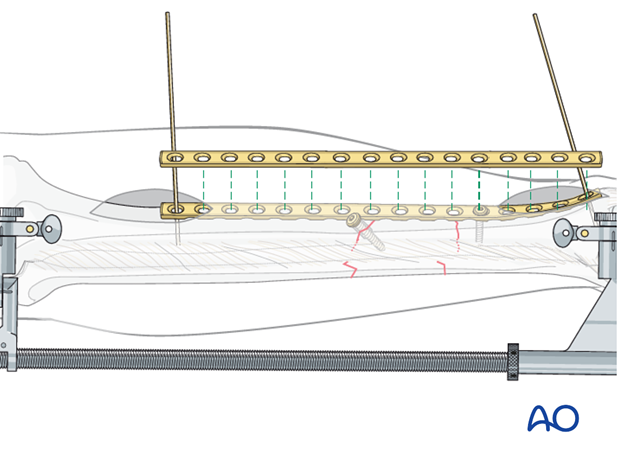 Screws can be inserted into both ends of the plate through the small incisions made to insert the plate.
