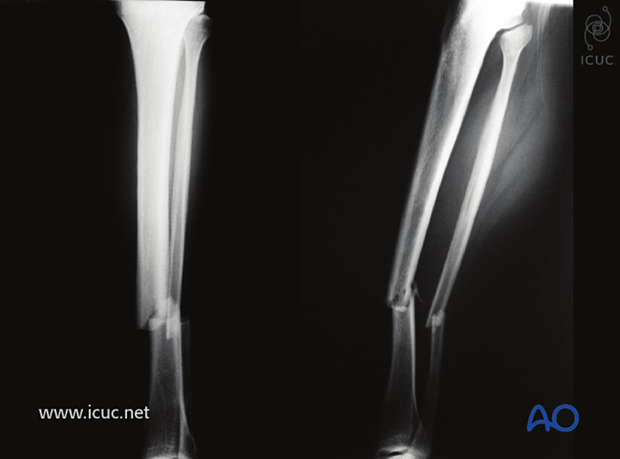 Preoperative AP and lateral images of closed, fragmentary distal tibial shaft fracture