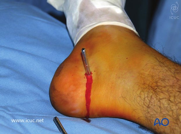 Pre-reduction pins are placed in the calcaneus and the posterior proximal tibia for the use of a femoral fixator on the medial side of the lower leg.