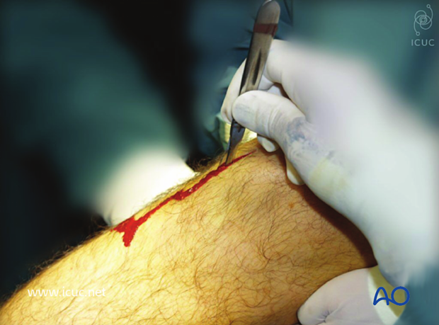 Incision over the patellar tendon to obtain access to the entry point