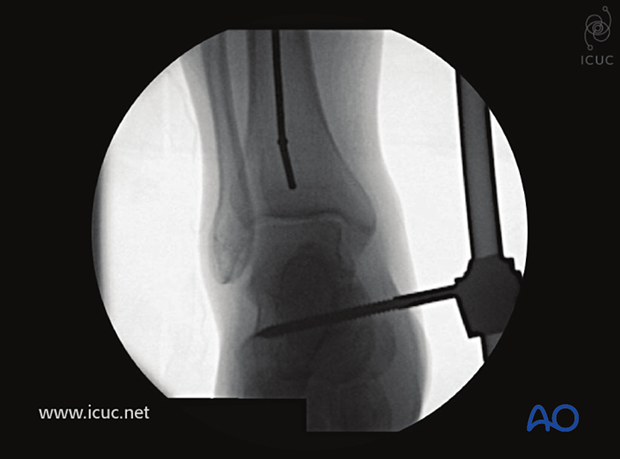 The ball-tipped guide wire is positioned in the middle of the distal tibia, touching the subchondral line.