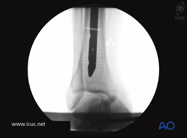 The nail is inserted into the tibia so that the tip rests just above the subchondral line.