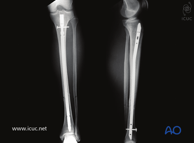 AP lateral images with excellent reduction and dynamically locked tibial nail