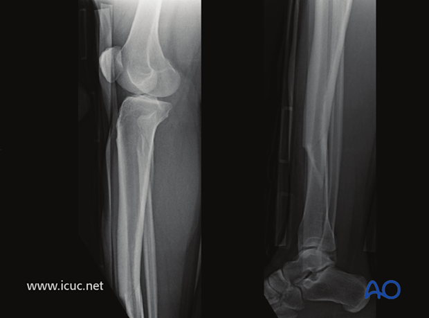 Lateral image of the same fracture.