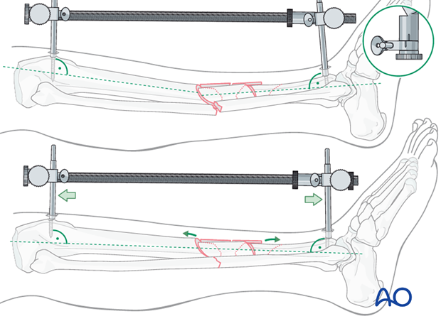 As tension is applied, length is restored, and the apex-posterior deformity is corrected.