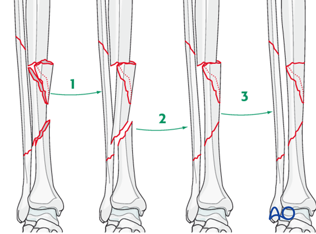 Appropriate surgical strategy is sequential, stepwise reduction of the fracture planes.