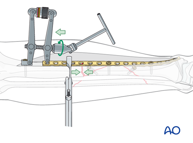 The articulated tension device (ATD) is used to compress the transverse fracture and complete the fixation.