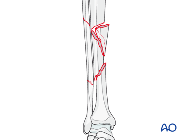 C2 tibial shaft fracture