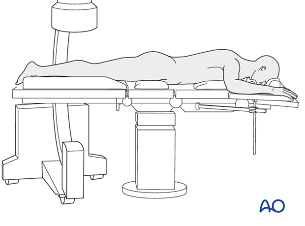 Prone position with C-arm