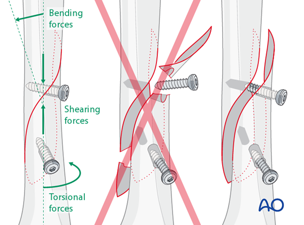 Bending, shearing and torsional forces may cause screw loosening