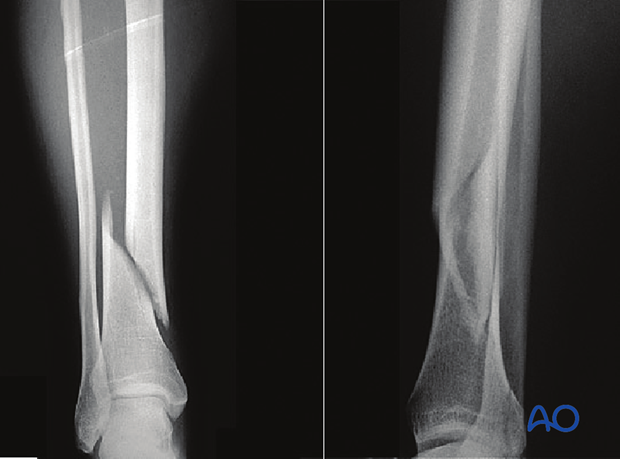 Assessing the fracture plane