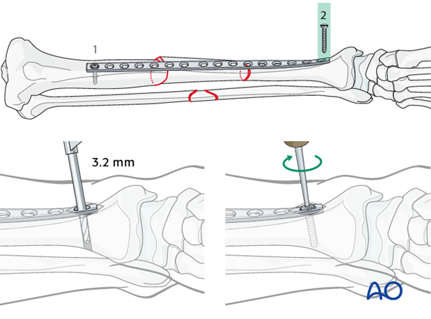 Insertion of the second screw