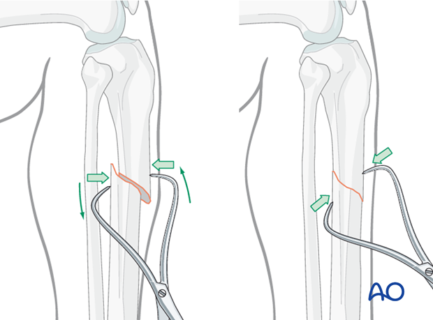 Percutaneous reduction forceps