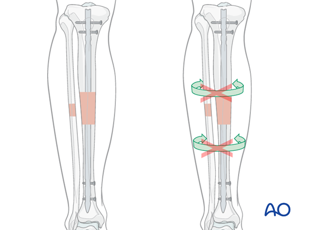 Intramedullary (IM) nailing is the first treatment choice for most tibial shaft fractures.