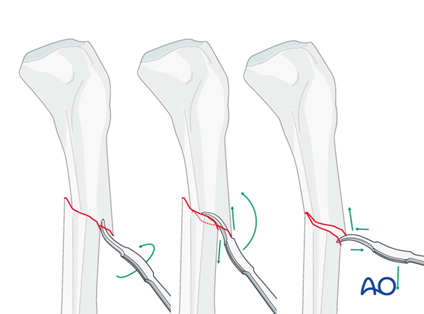Reduction with Hohmann retractor