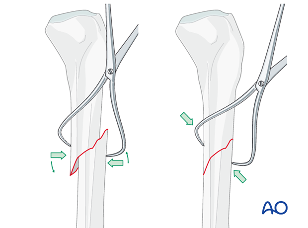 Reduction with bone clamp
