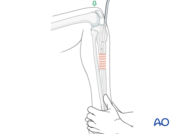 Stabilize the foot on the OR table to maintain reduction without distraction as the nail is advanced.