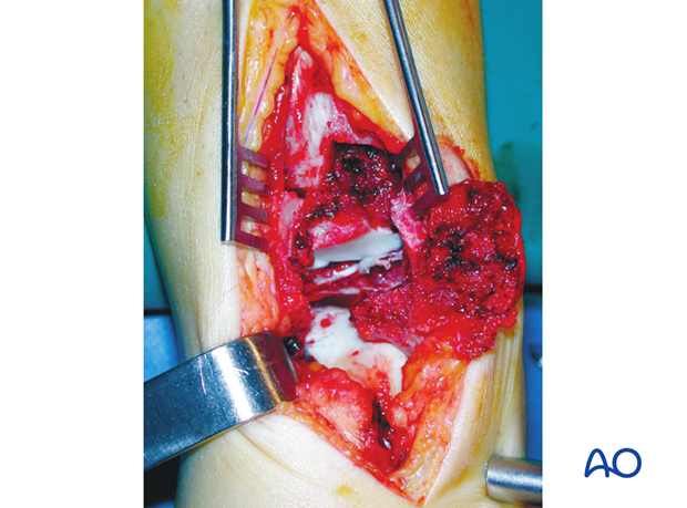anteromedial approach to the distal tibia