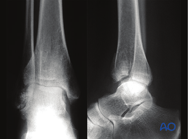 anterolateral approach to the distal tibia