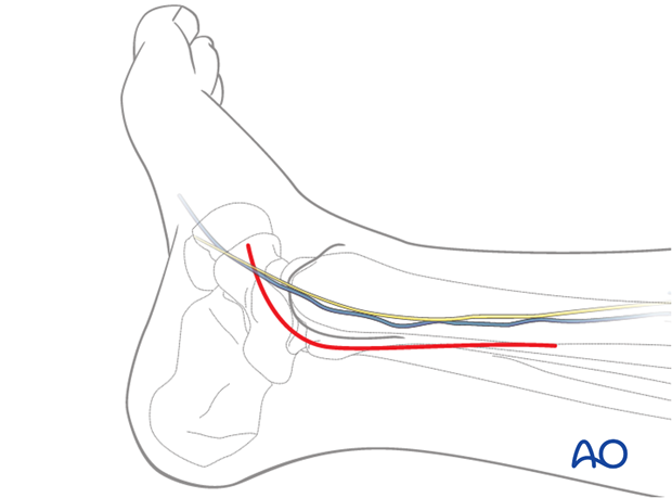 posteromedial approach to the distal tibia