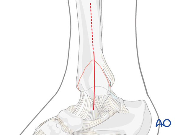 medial approach to the distal tibia