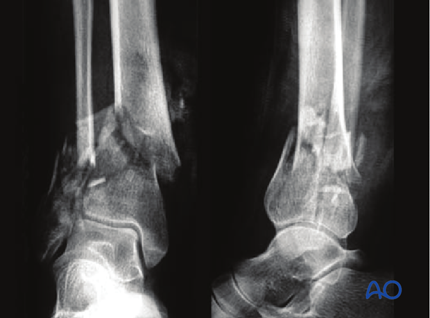 minimally invasive approach to the distal tibia