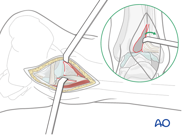 posterolateral limited open approach to the distal tibia