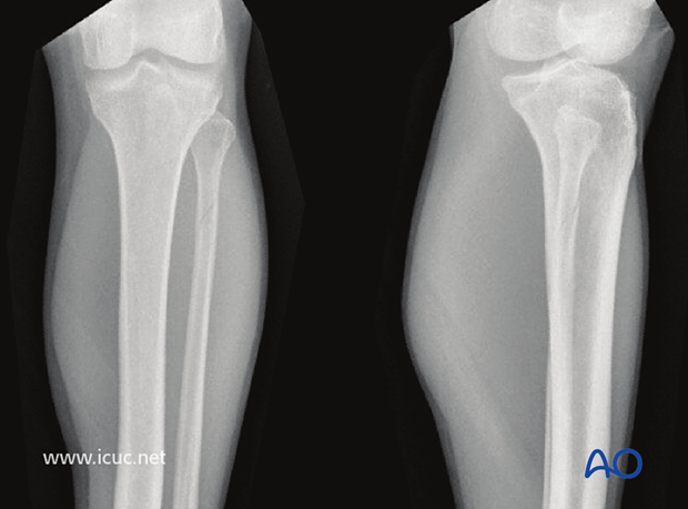 Preoperative AP and lateral X-rays show a Maisonneuve fracture of the proximal fibula in a 25-year-old.