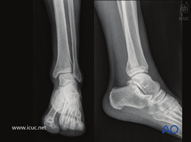 Preoperative AP and lateral X-rays show the posteromedial injury to the distal tibia.