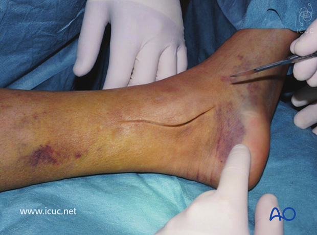 The distal tibia was accessed through a medial incision.