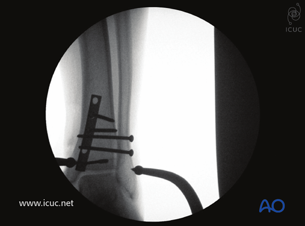Intraoperative AP X-ray showing fracture reduction