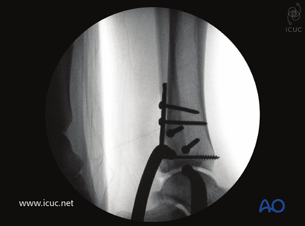 Intraoperative lateral X-ray showing fracture reduction