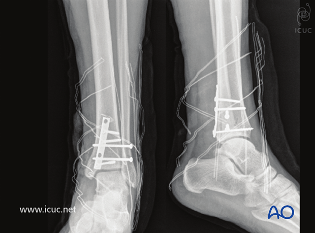 Postoperative AP and lateral view