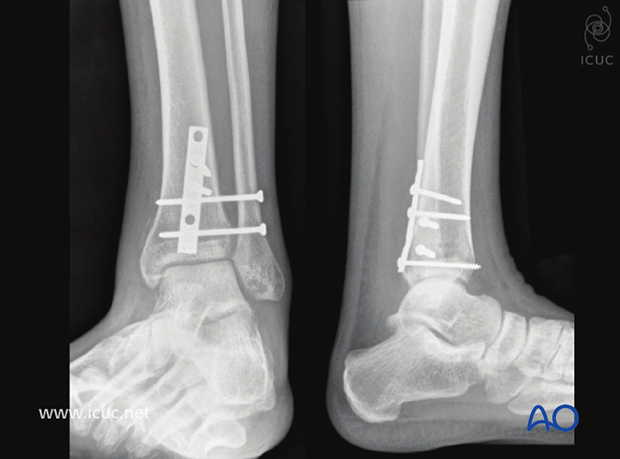 6 weeks postoperative AP and lateral view showing a stable ankle ready for weight bearing