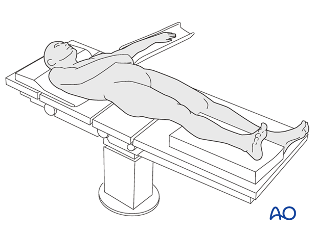 Patient positioning for lower leg casting
