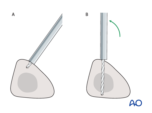Alternative tibial pin placement for modular external fixation