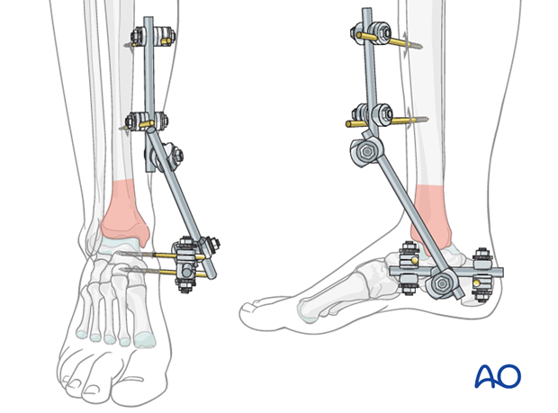 Modular external fixation to treat a distal tibia fracture