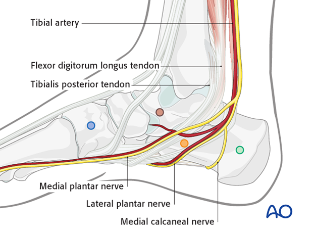 Pin placement in the foot for modular external fixation