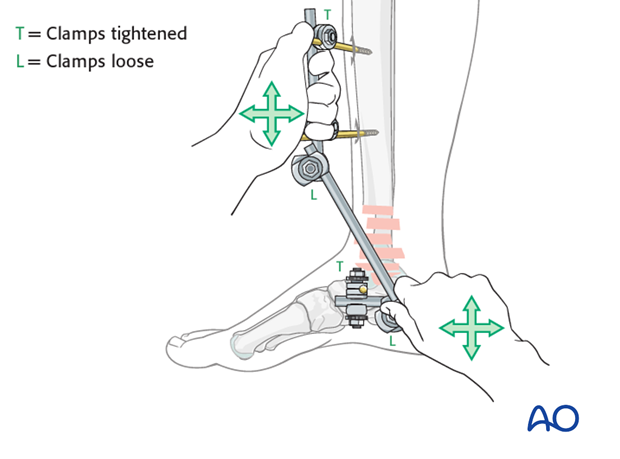 Distal tibia fracture reduction with modular external fixation