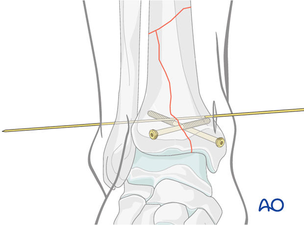 Planning of wire placement for hybrid external fixation in distal tibia complete articular fractures
