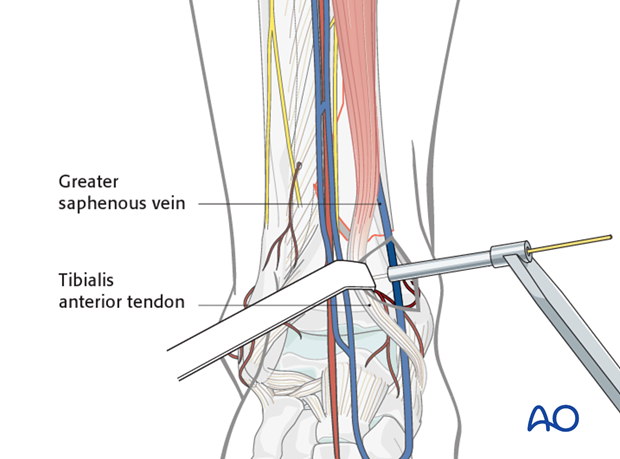 Insertion of the first wire in the distal tibia for hybrid external fixation