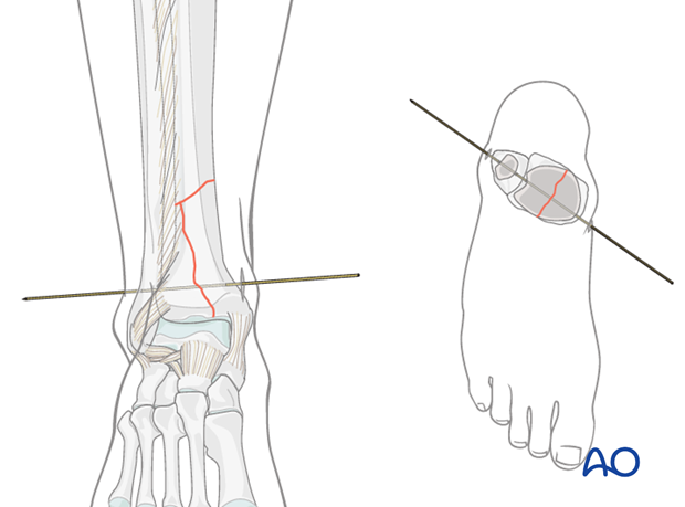 Insertion of a non-olive wire in the distal tibia for hybrid external fixation