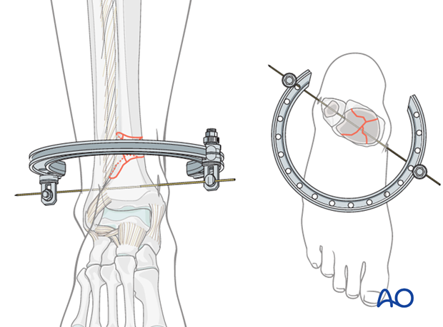 Ring placement for hybrid external fixation