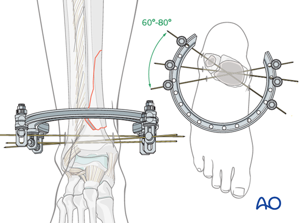 Insertion of additional wires in the distal tibia for hybrid external fixation