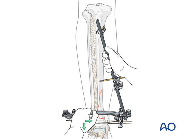Reduction and fixation of a distal tibia fracture with hybrid external fixation