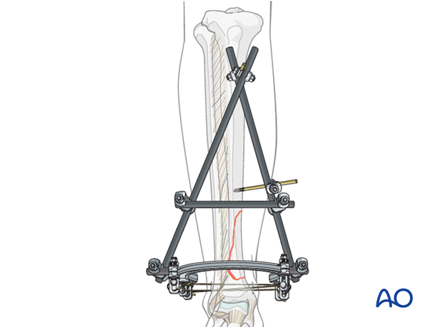 Hybrid external fixation for distal tibia extraarticular fractures