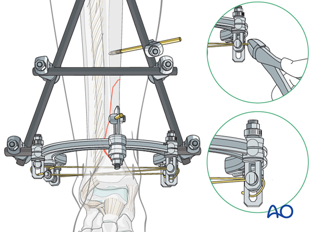 Wire bending in hybrid external fixation