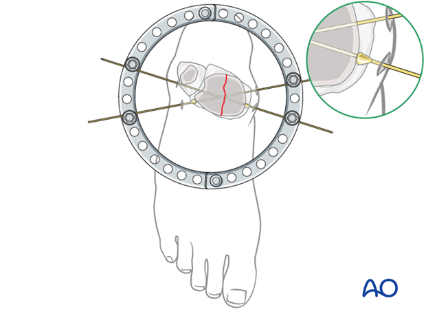 Use of reduction wires for full ring external fixation to compress articular fragments
