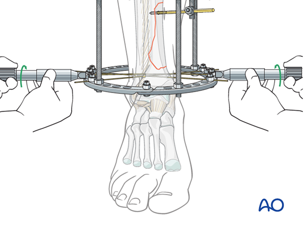 Tensioning of reduction wires in full ring external fixation