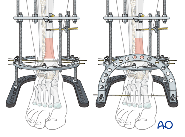 Frame extension to calcaneus and forefoot in full ring external fixation